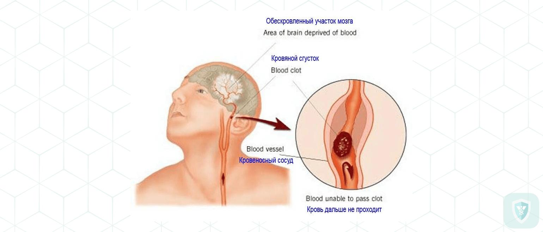 Появление менингеальных и очаговых симптомов