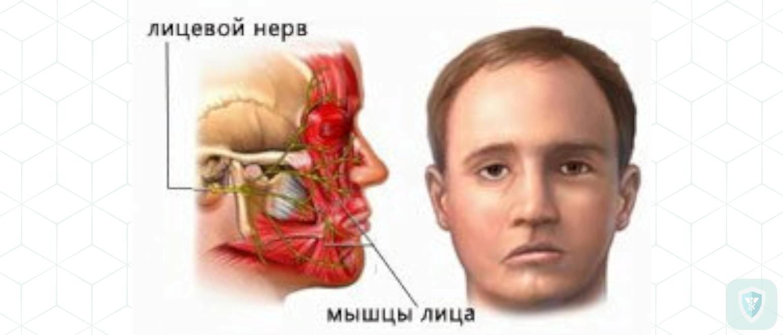 Невропатия лицевого нерва. Лечение