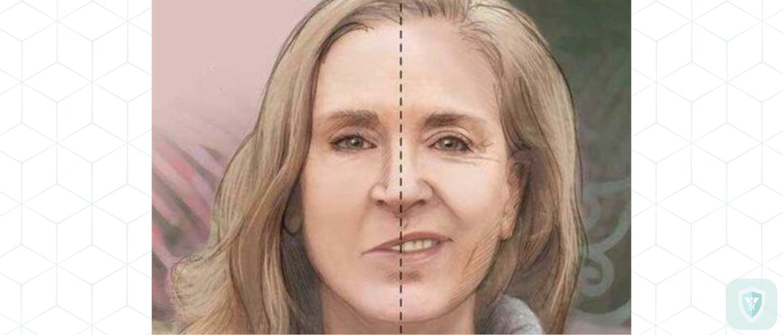 Диагноз: неврит правого лицевого нерва