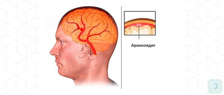 Энцефалит, менингоэнцефалит, церебральный арахноидит