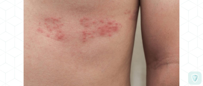 Гриппозный токсический ганглионит симптомы