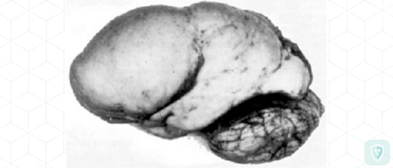 Гриппозный токсический лизецефалит