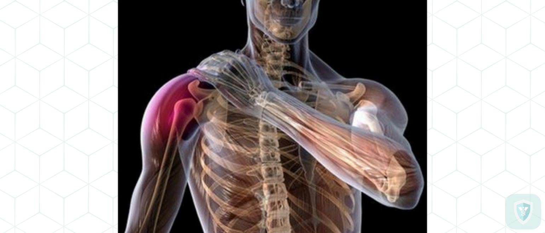 Гриппозный токсический плечевой плексит