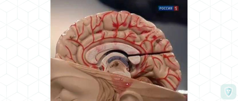 Гриппозный токсический церебральный арахноидит