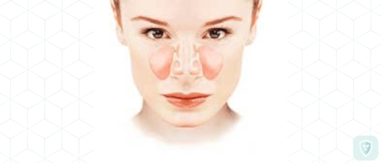 Лечение гайморита без пробивания