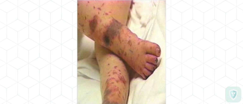 Аденовирусный менингит