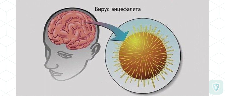 Гриппозный геморрагический менингоэнцефалит