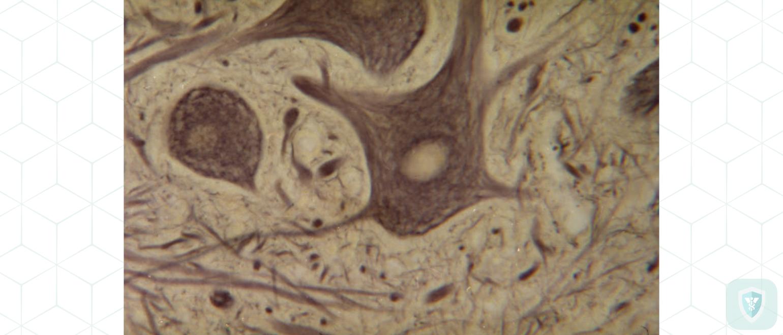 Набухание нервных клеток