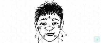 Задет лицевой нерв