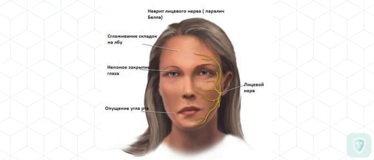 Лицевой нерв простуда