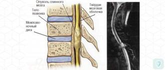Поражения спинного мозга