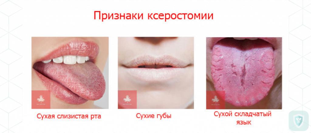 Ксеростомия: причины, лечение