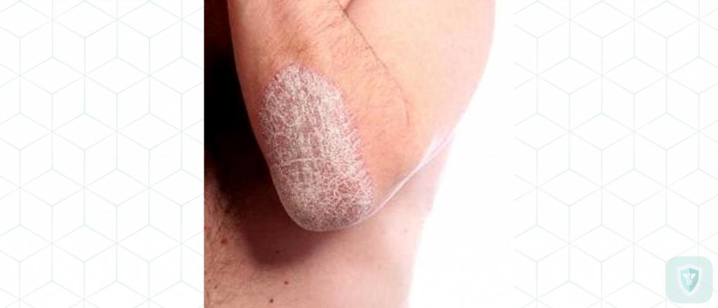 Чешуйчатый лишай: симптомы и лечение