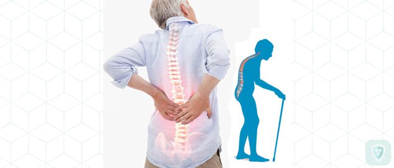 Меры профилактики остеопороза