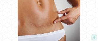 Коллоидный рубец: лечение и удаление