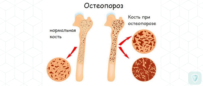 Для чего используется денситометрия костей?