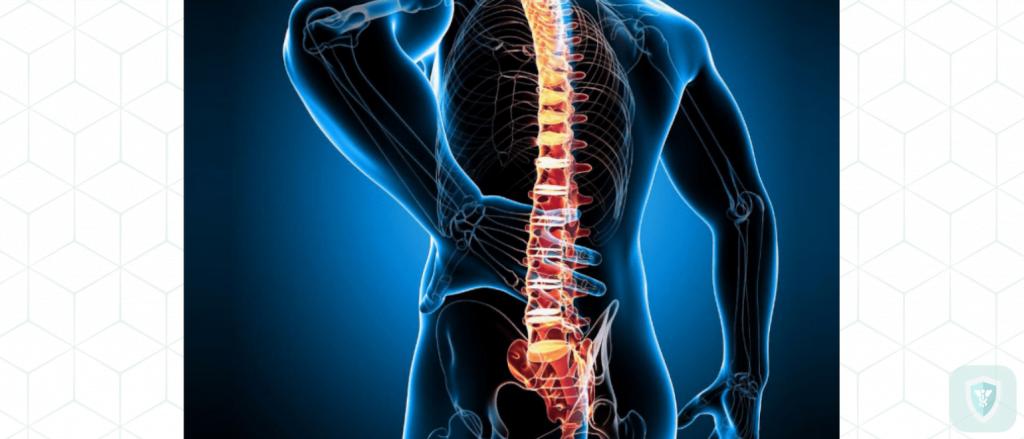 Остеохондроз: симптомы, лечение