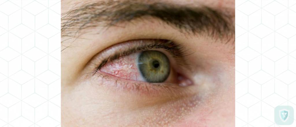 Лечение демодекоза глаз