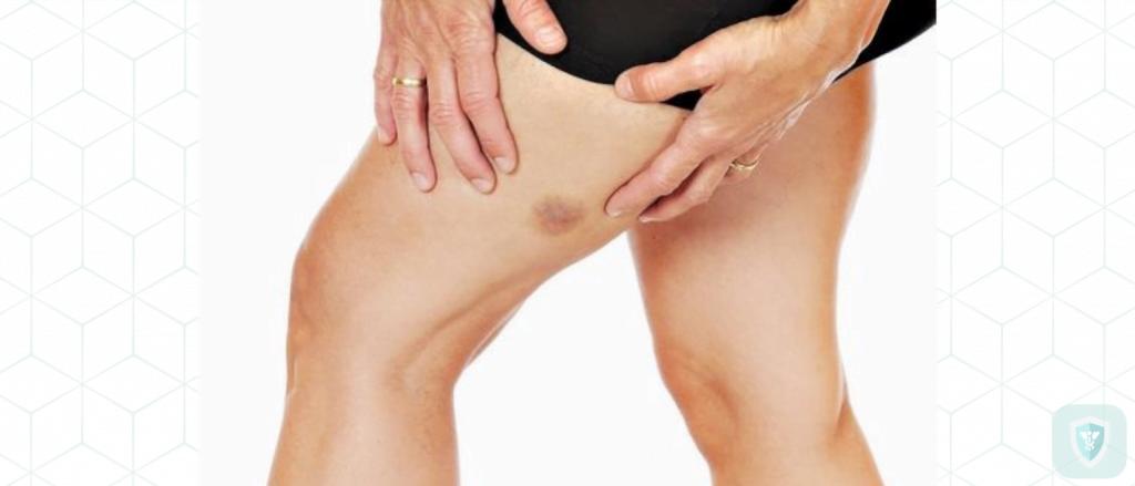 Cиняки на теле: причины, лечение