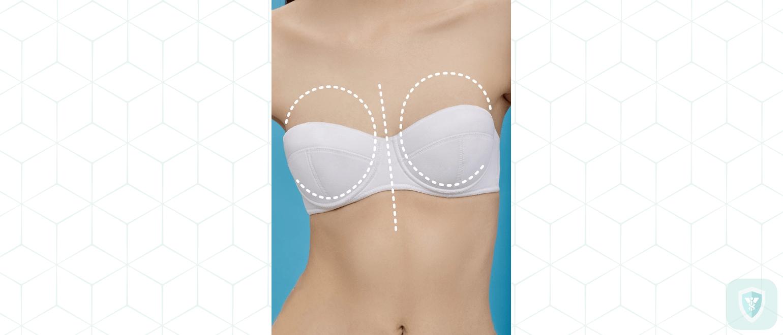 История операций по увеличению груди