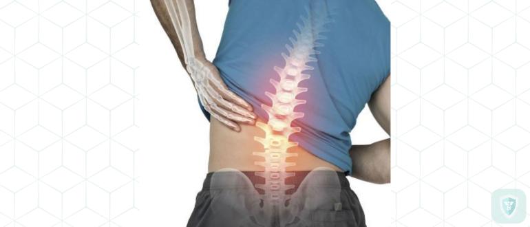 4 нетривиальные причины боли в пояснице