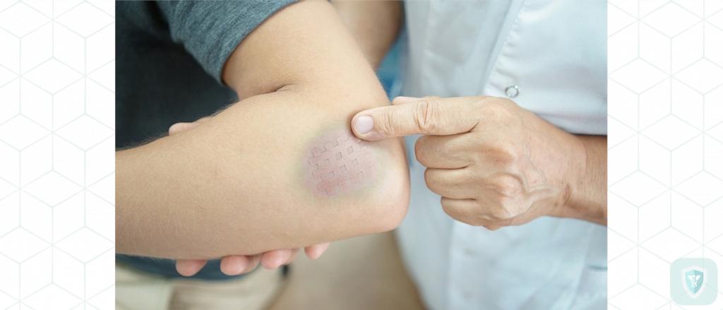 Нетривиальные причины появления синяков на теле