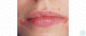 Как вылечить заеды в уголках рта (ангулит) с помощью натуральных средств?