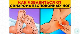 СБН - синдром беспокойных ног